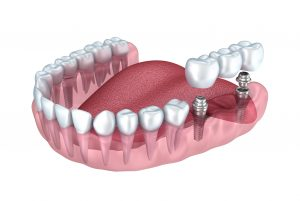 dental implants dresher pa 19025