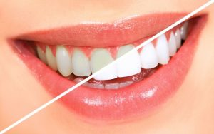 Tips to Whiten Your Teeth and Brighten Your Smile