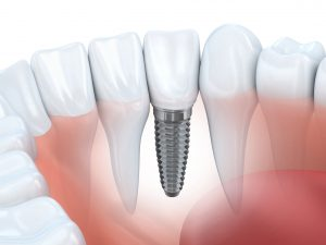 Dental implants Fort Washington