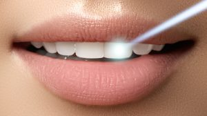 Laser Advancements in Dentistry in Fort Washington